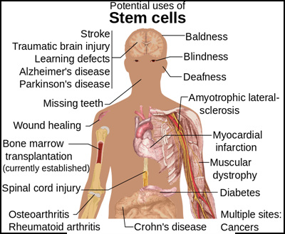 800px-Stem_cell_treatments_svg.jpg